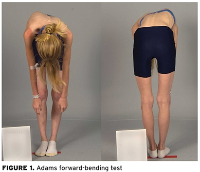 Adams forward-bending test