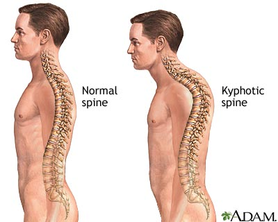 Kyphosis Treatment - Hudson Valley Scoliosis