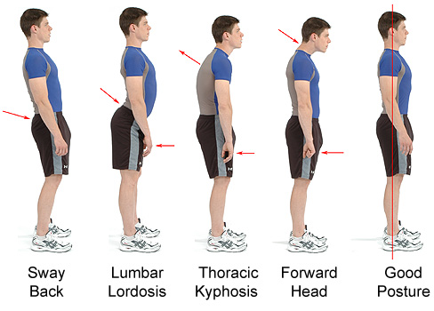 lordosis treatment - kyphosis treatment