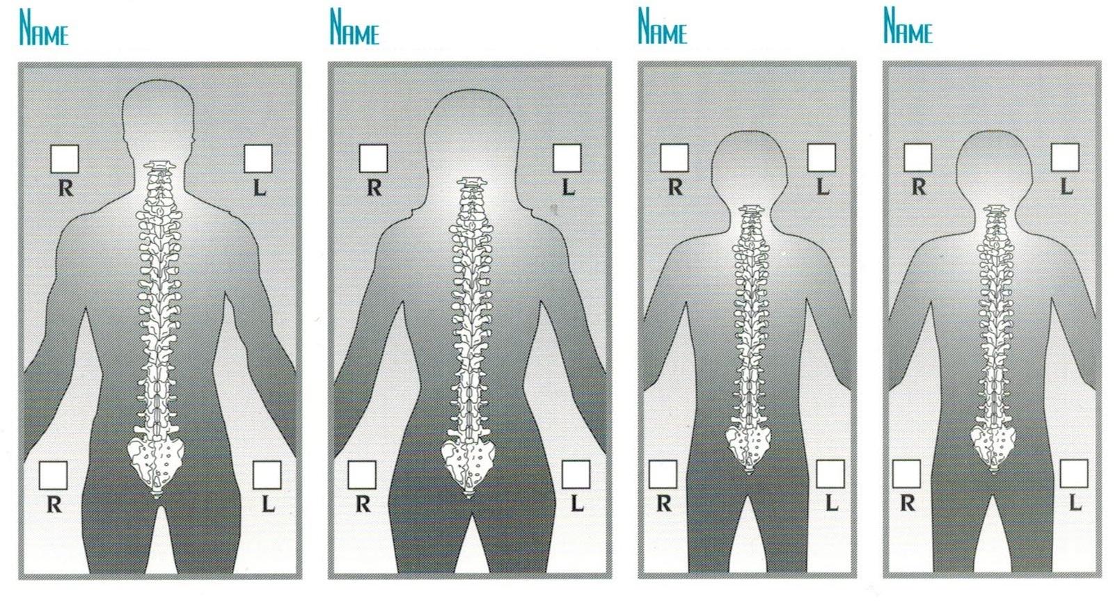 scoliosis posture chart
