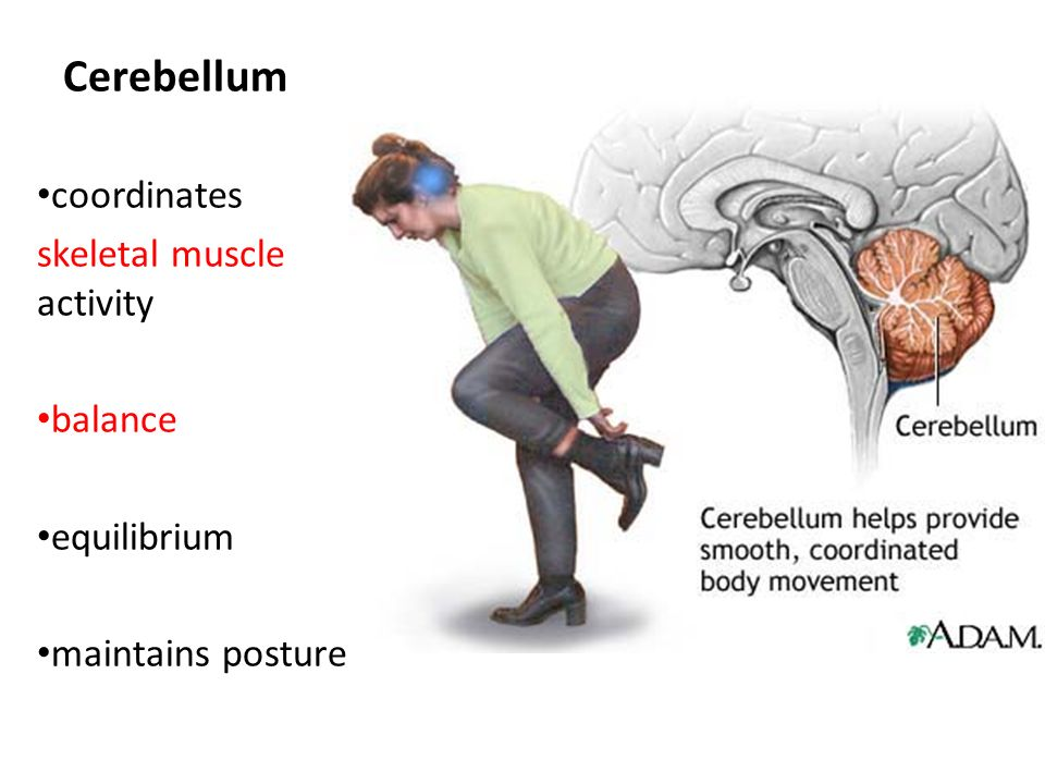 scoliosis and cerebellum
