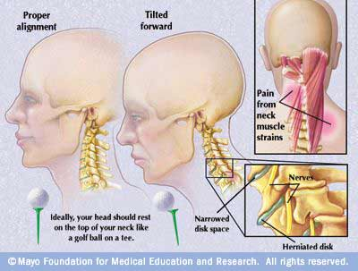 Scoliosis Pain Relief - Scoliosis and Headaches - Hudson ...