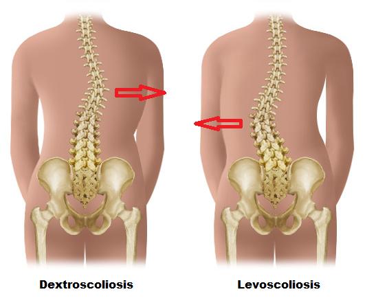 types of scoliosis - dextroscoliosis and levoscoliosis