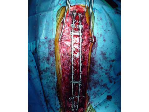 Scoliosis Surgery: The facts your Orthopedic Surgeon won't ...